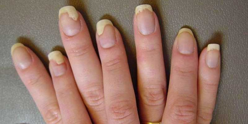 علت درد ناخن کاشت شده